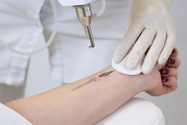 Tattoolaserentfernung in Düsseldorf